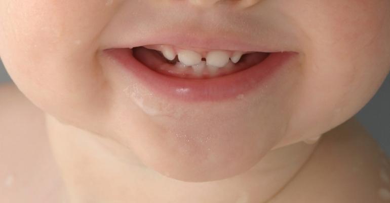 Sugar and Toddlers' Teeth