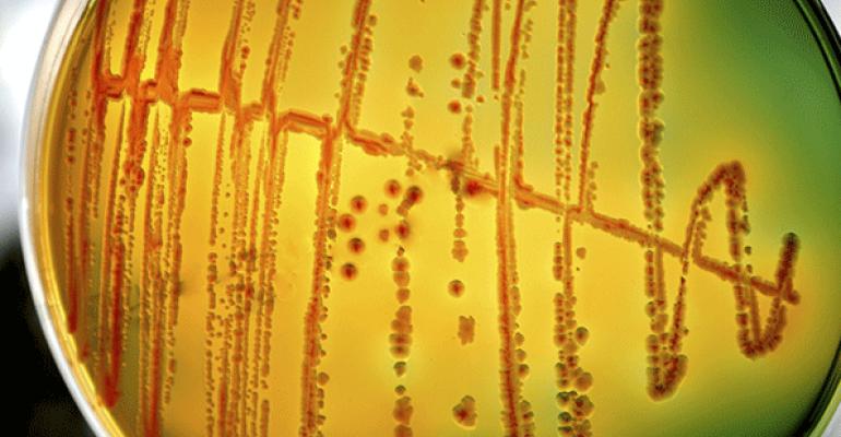 CDC: E. coli, salmonella illnesses dropped in 2014